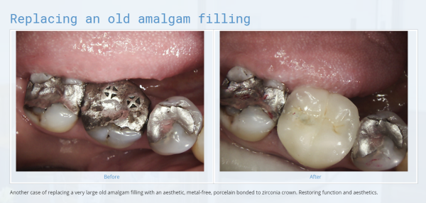 Replacing an old amalgam filling