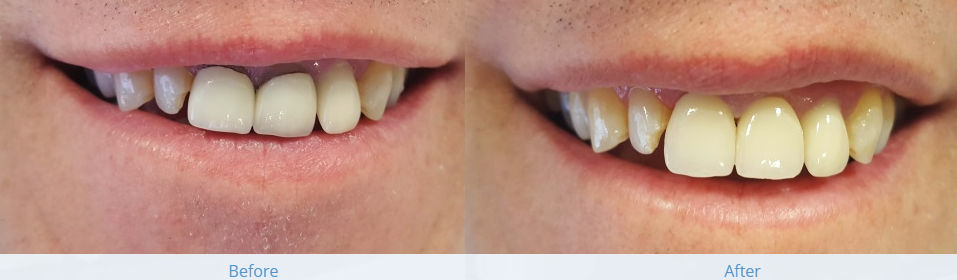 Crown treatment before and after