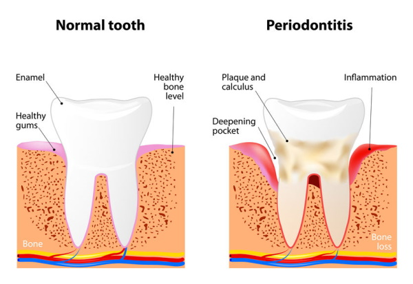 Illustration of normal teeth vs. Periodontitis